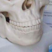Traumdeutung Zahnverlust